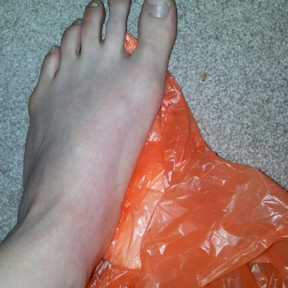 Icing the foot - ignore the remains of a 6 month old pedicure.